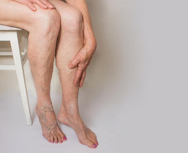 forró fürdők visszerek a lábakon